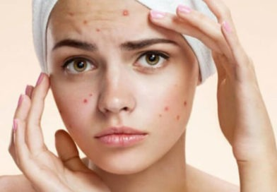 How to get rid of pimples in 30 seconds