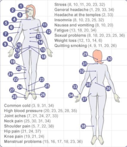 Cupping Points