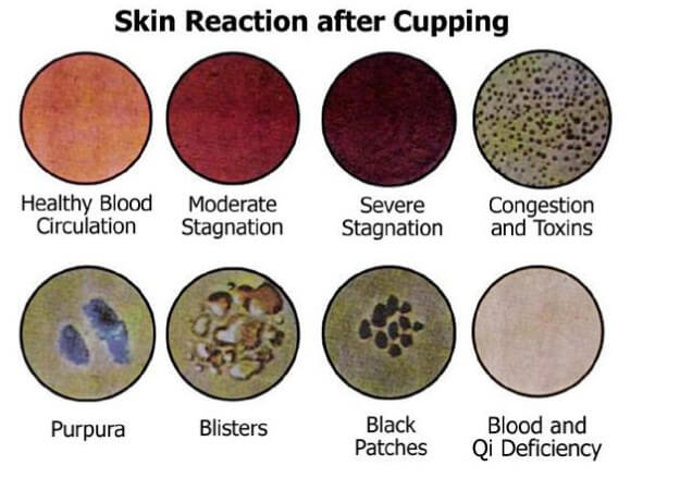 Cupping Colors - silicon cupping at home